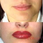 губи до і після фото